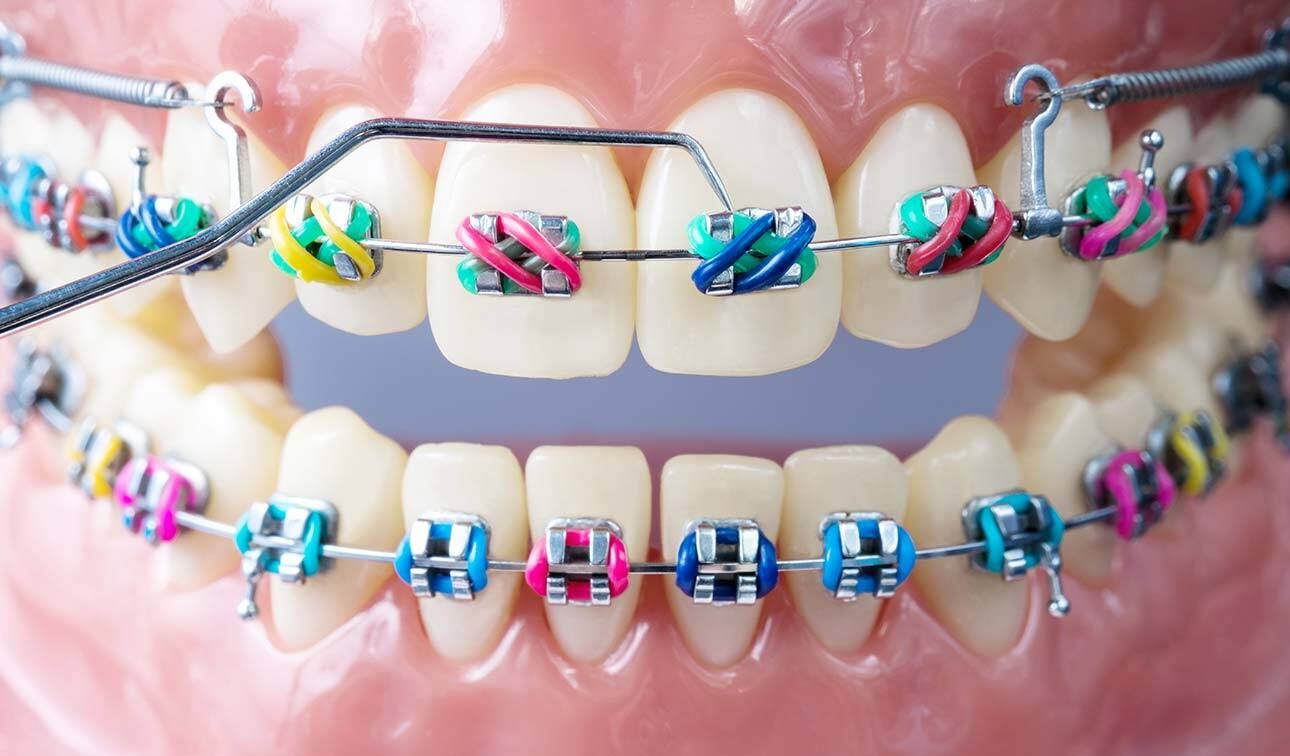 Orthodontist: Insight Into a Profession